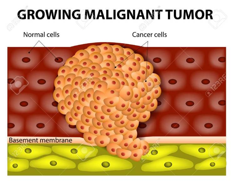 32719838-cancer-cells-in-a-growing-malignant-tumor-malignant-neoplasm-metastasis